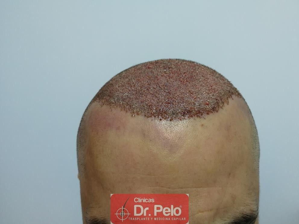 [Imagen: transplante-capilar-dr-pelo-7.jpg]