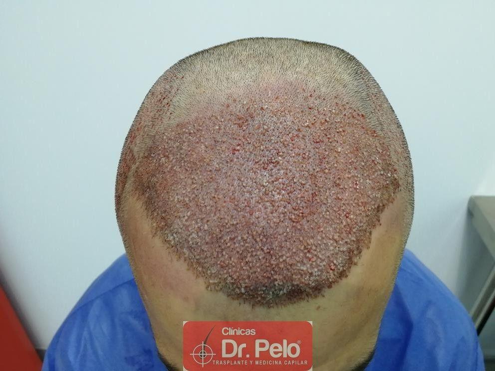 [Imagen: transplante-capilar-dr-pelo-8.jpg]