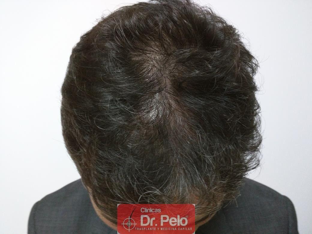 [Imagen: tratamiento-capilar-dr-pelo-21.jpg]