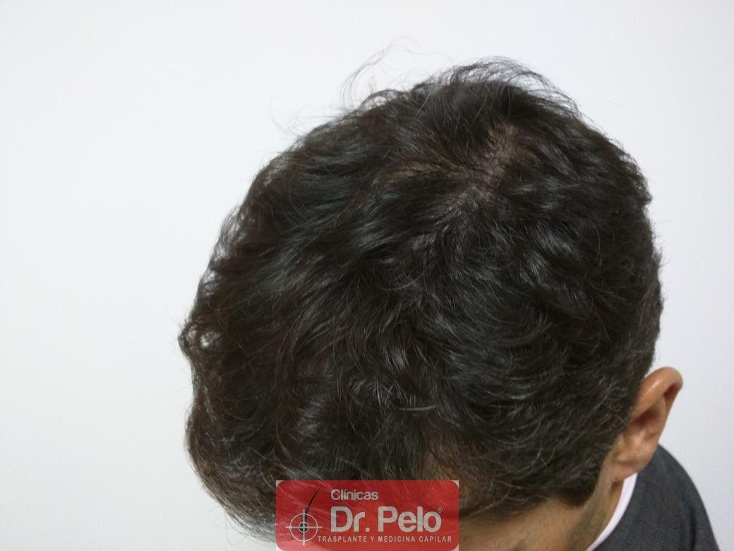 [Imagen: tratamiento-capilar-dr-pelo-22.jpg]