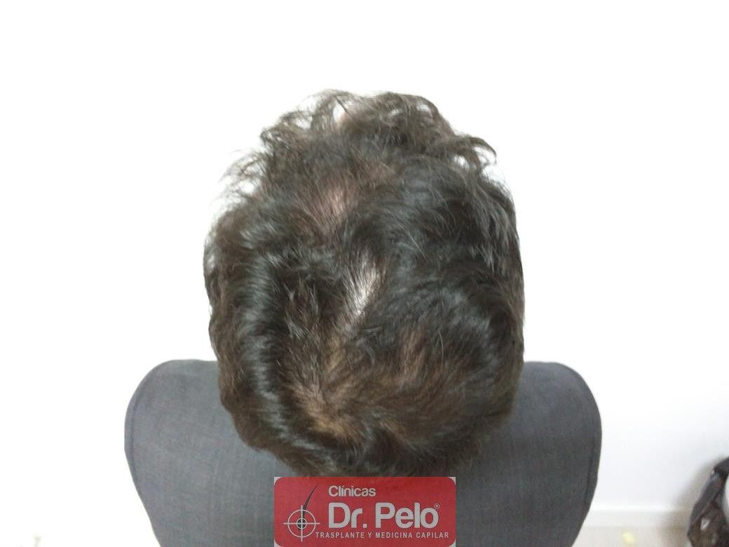 [Imagen: tratamiento-capilar-dr-pelo-26.jpg]