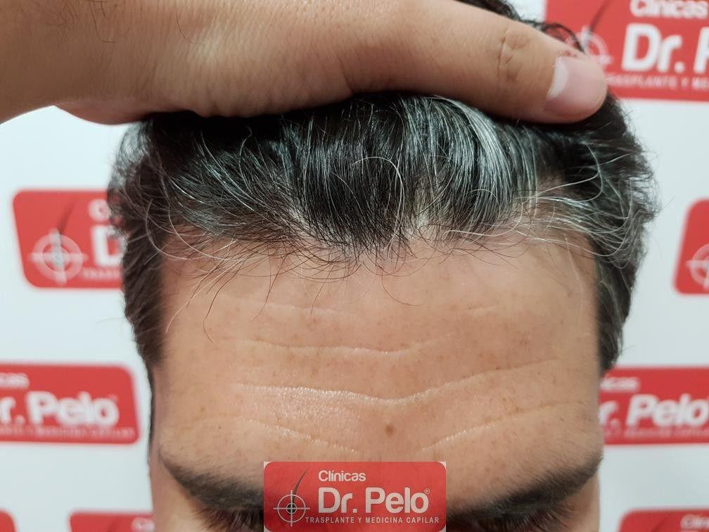 [Imagen: tratamiento-capilar-dr-pelo-29.jpg]