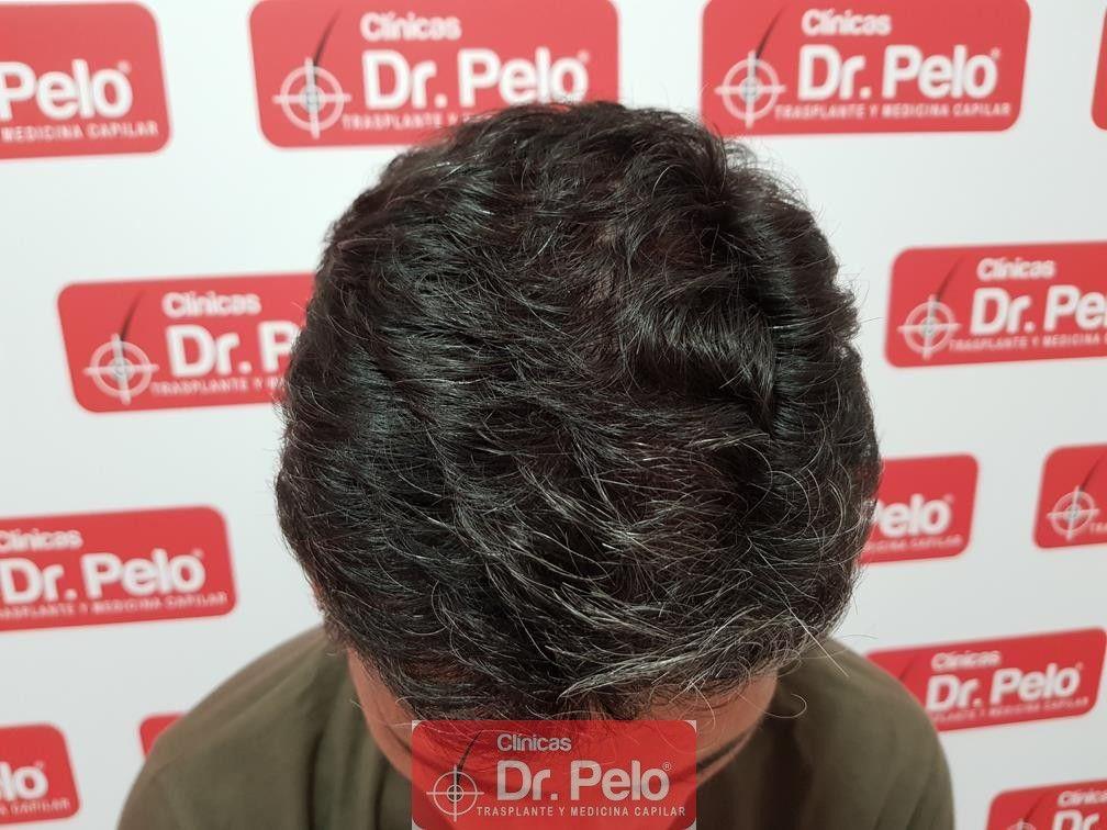 [Imagen: tratamiento-capilar-dr-pelo-30.jpg]