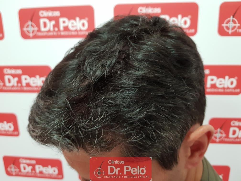 [Imagen: tratamiento-capilar-dr-pelo-31.jpg]
