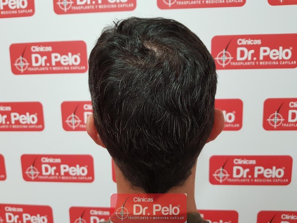 [Imagen: tratamiento-capilar-dr-pelo-33.jpg]