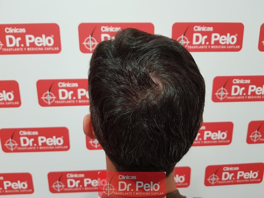 [Imagen: tratamiento-capilar-dr-pelo-34.jpg]