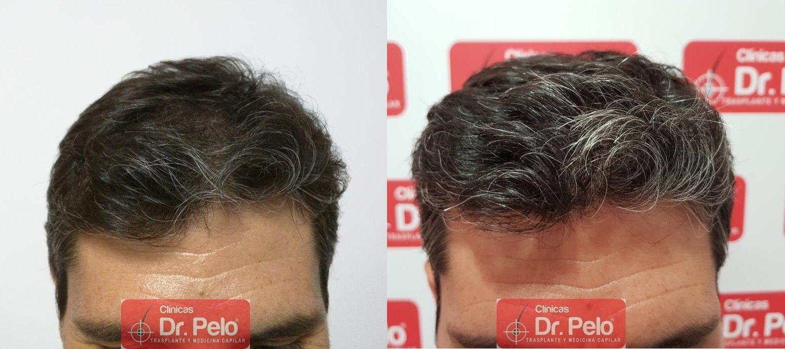 [Imagen: tratamiento-capilar-dr-pelo-40.jpg]