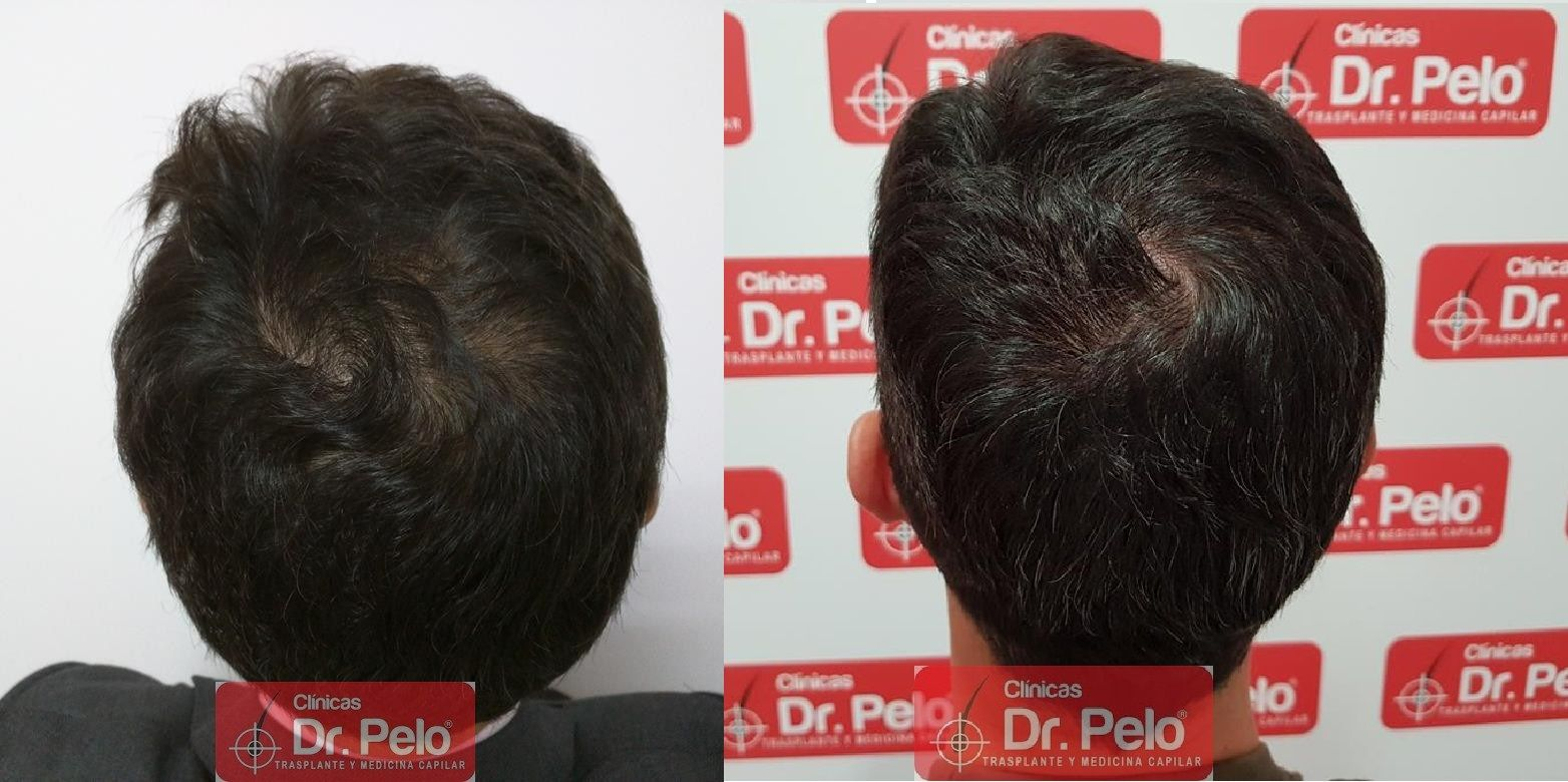 [Imagen: tratamiento-capilar-dr-pelo-43.jpg]