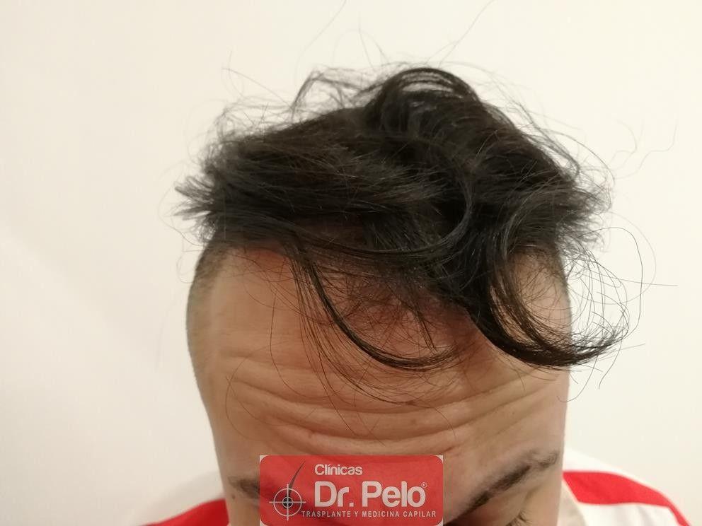 [Imagen: tratamiento-mesoterapia-capilar-dr-pelo-20.jpg]
