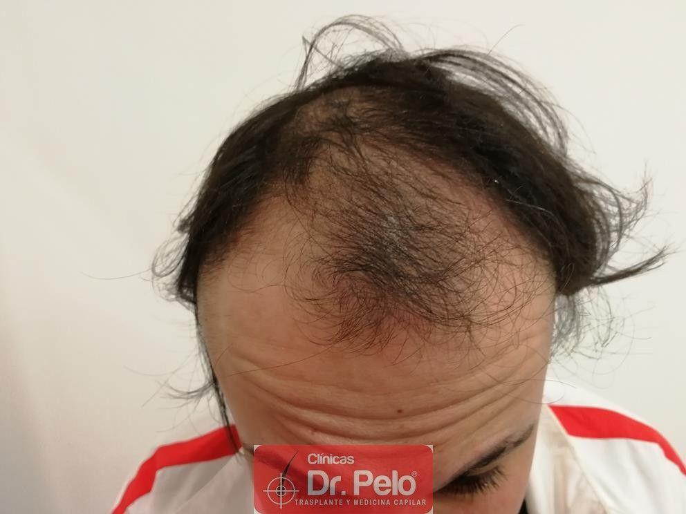 [Imagen: tratamiento-mesoterapia-capilar-dr-pelo-21.jpg]