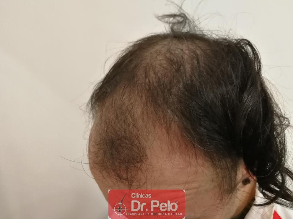 [Imagen: tratamiento-mesoterapia-capilar-dr-pelo-23.jpg]