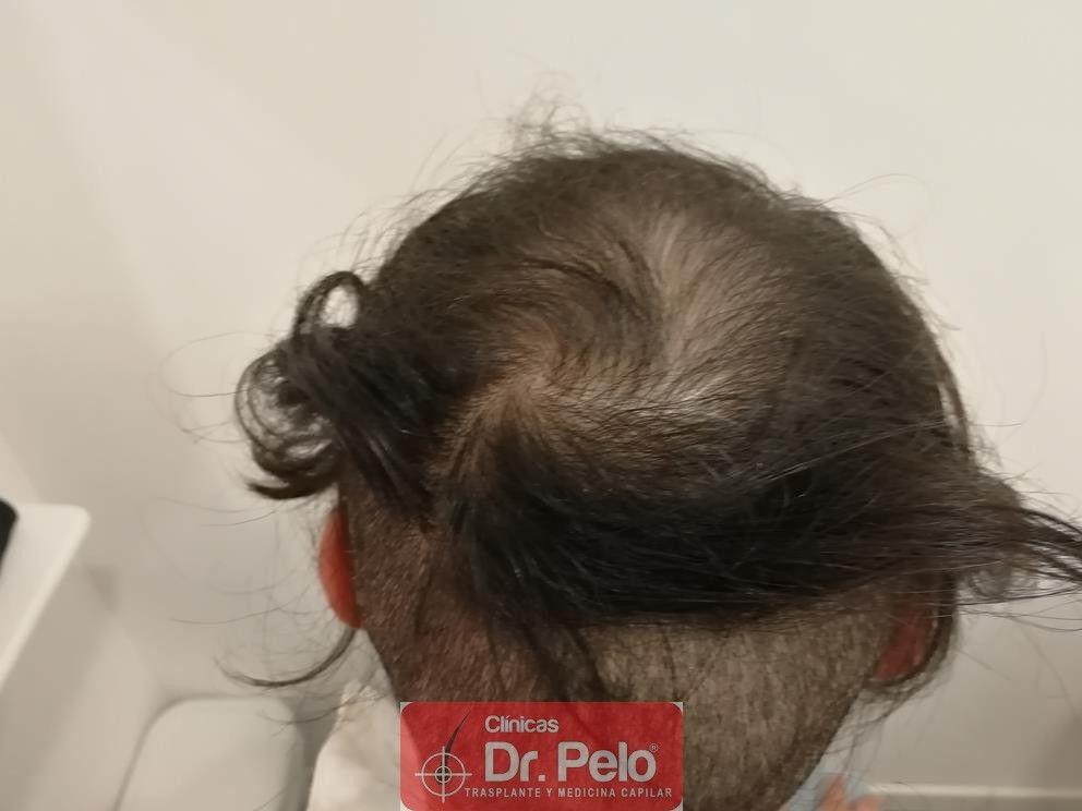 [Imagen: tratamiento-mesoterapia-capilar-dr-pelo-25.jpg]