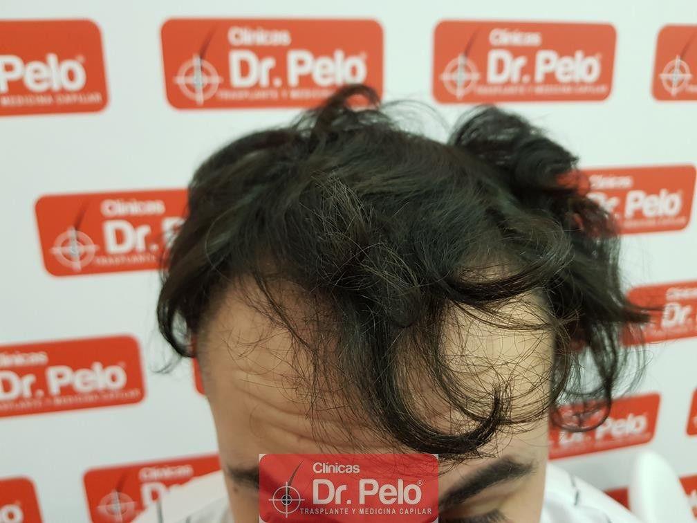 [Imagen: tratamiento-mesoterapia-capilar-dr-pelo-29-1.jpg]