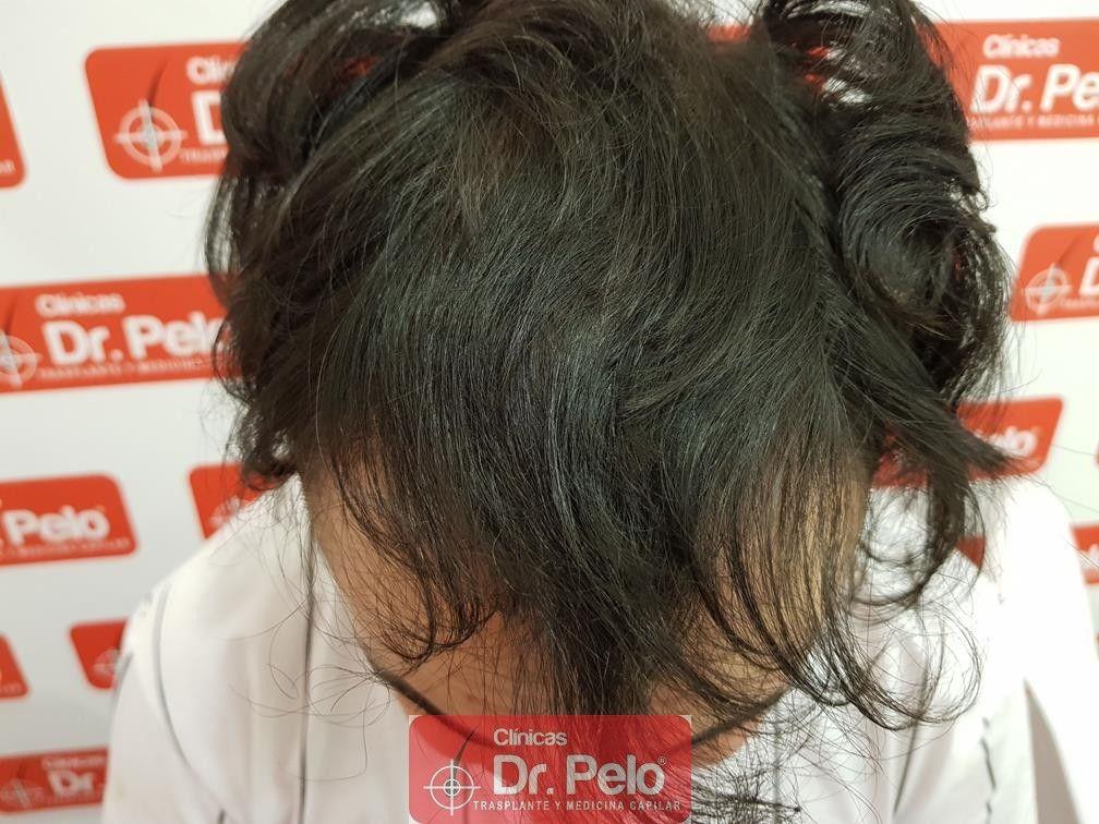 [Imagen: tratamiento-mesoterapia-capilar-dr-pelo-30-1.jpg]