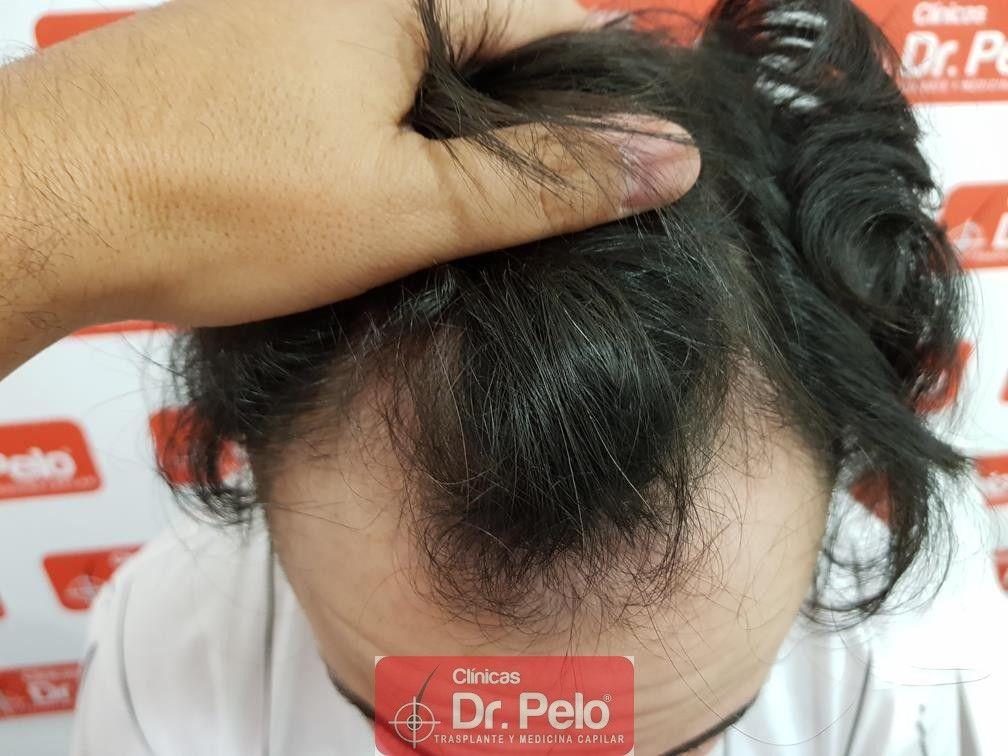 [Imagen: tratamiento-mesoterapia-capilar-dr-pelo-31-1.jpg]