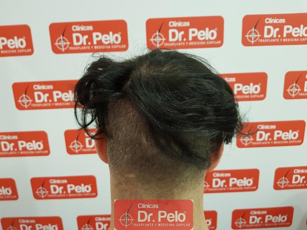 [Imagen: tratamiento-mesoterapia-capilar-dr-pelo-33-1.jpg]