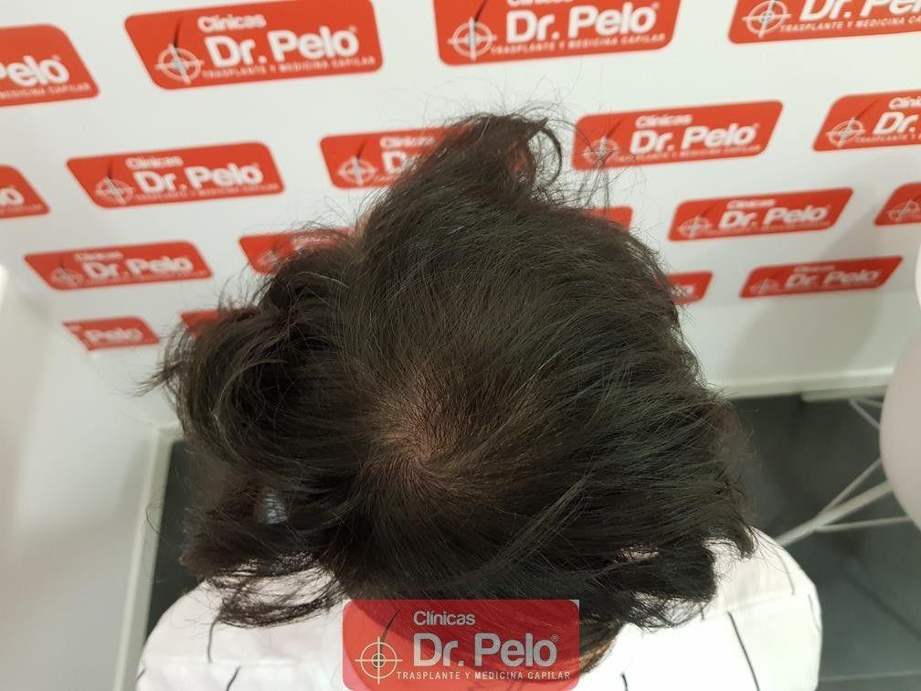 [Imagen: tratamiento-mesoterapia-capilar-dr-pelo-35.jpg]