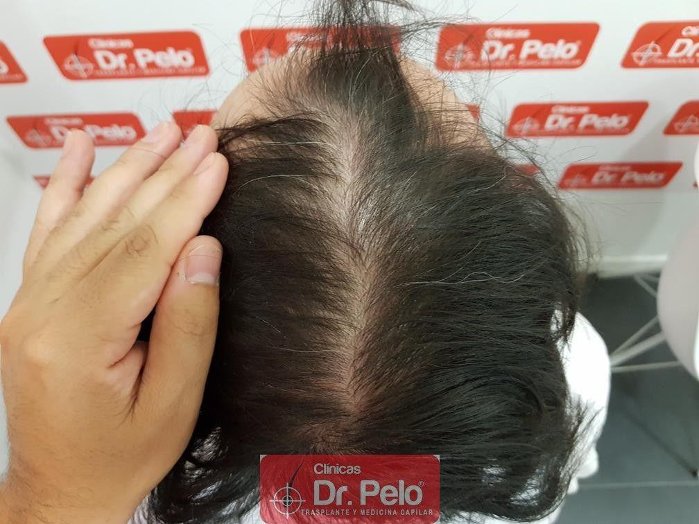 [Imagen: tratamiento-mesoterapia-capilar-dr-pelo-36.jpg]