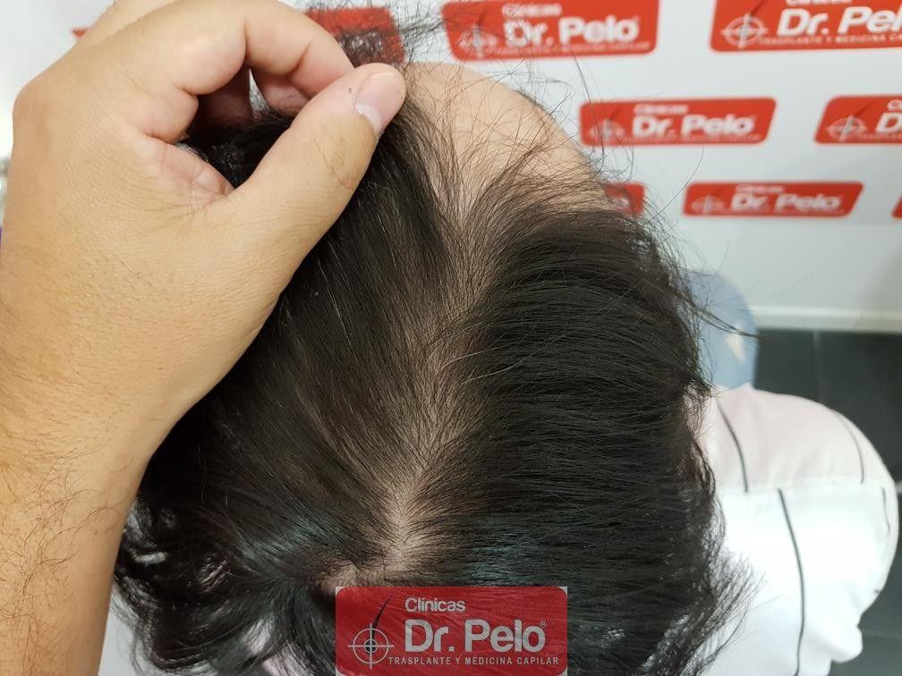 [Imagen: tratamiento-mesoterapia-capilar-dr-pelo-37.jpg]