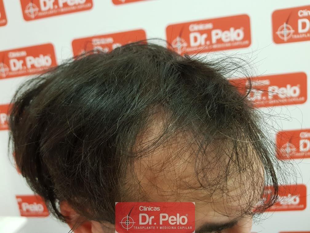 [Imagen: tratamiento-mesoterapia-capilar-dr-pelo-38.jpg]