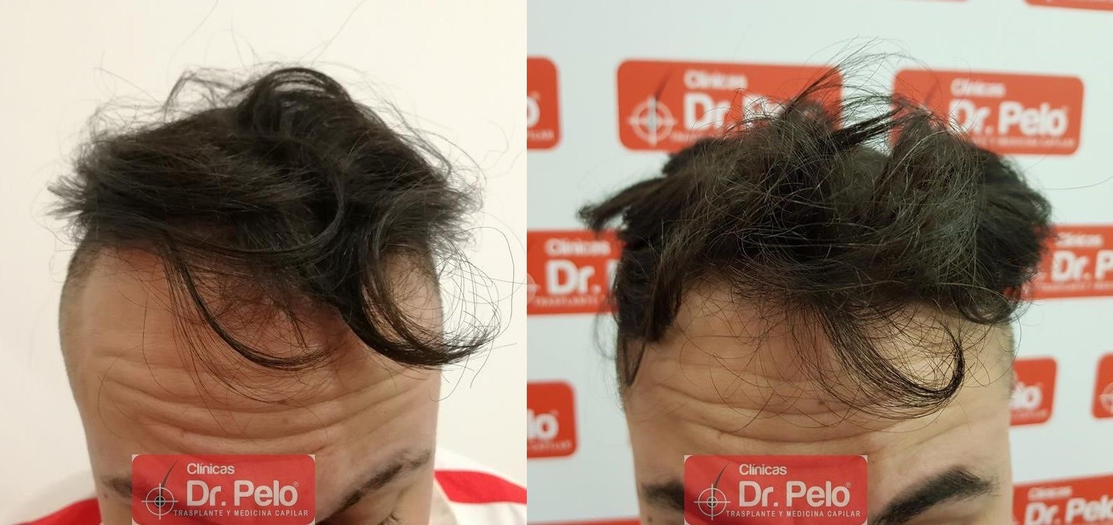 [Imagen: tratamiento-mesoterapia-capilar-dr-pelo-40-1.jpg]