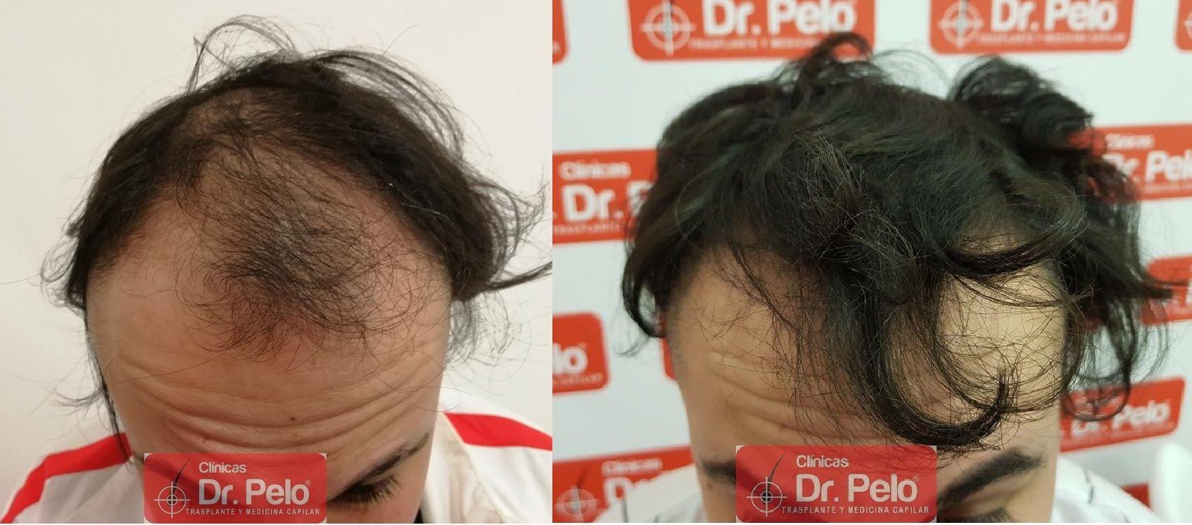 [Imagen: tratamiento-mesoterapia-capilar-dr-pelo-41-1.jpg]