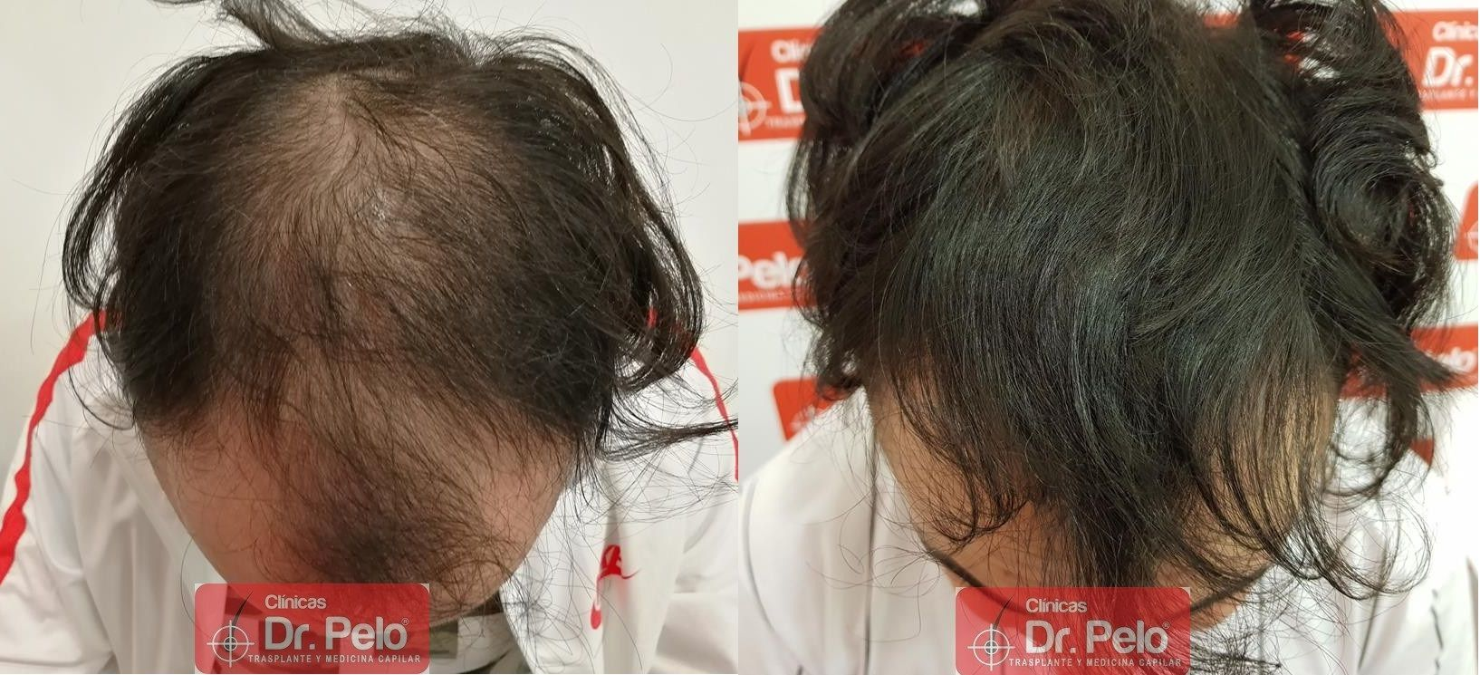 [Imagen: tratamiento-mesoterapia-capilar-dr-pelo-42-1.jpg]