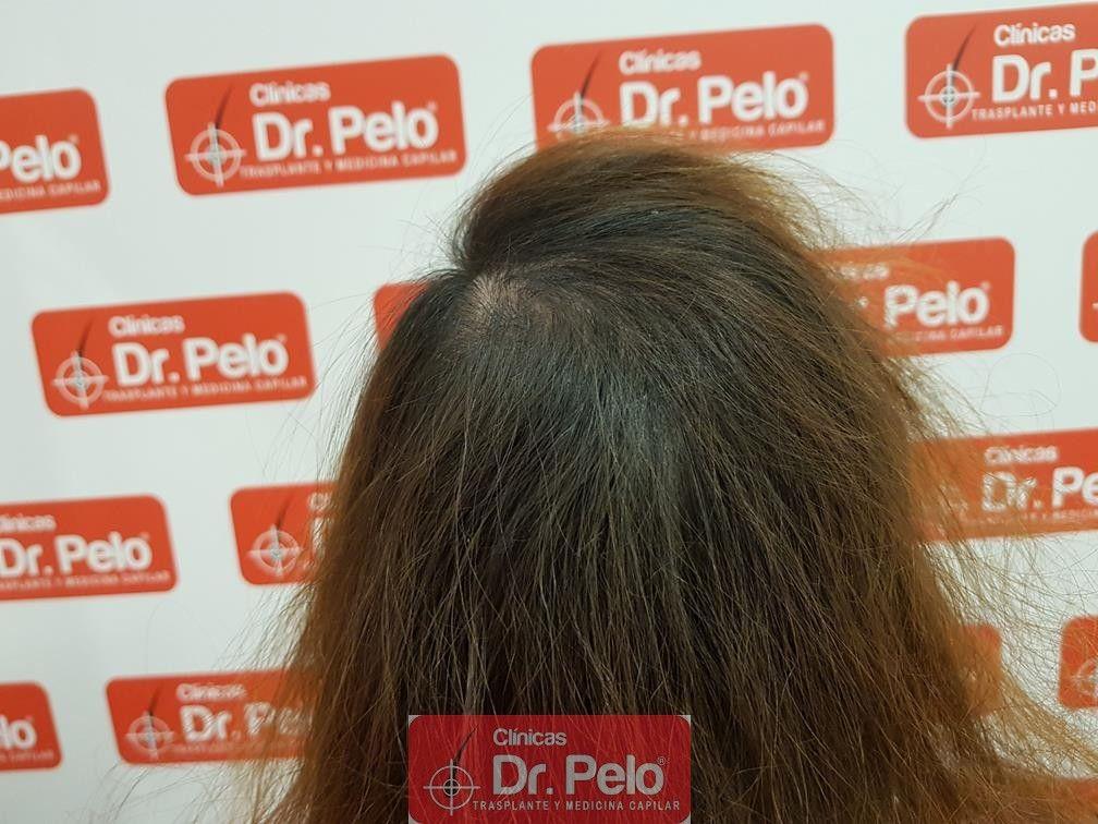[Imagen: tratameinto-capilar-dr-pelo-11-1.jpg]