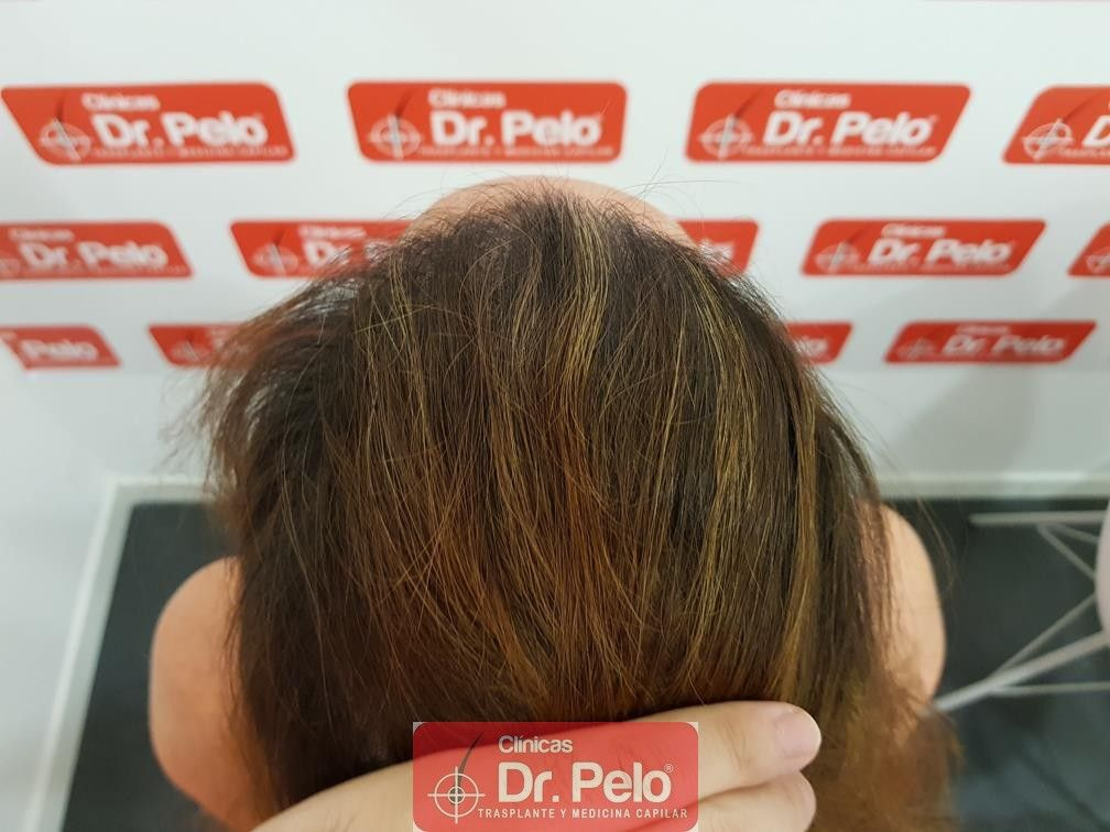 [Imagen: tratameinto-capilar-dr-pelo-13-1.jpg]