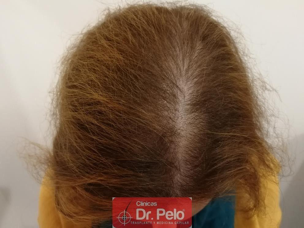 [Imagen: tratameinto-capilar-dr-pelo-3-1.jpg]