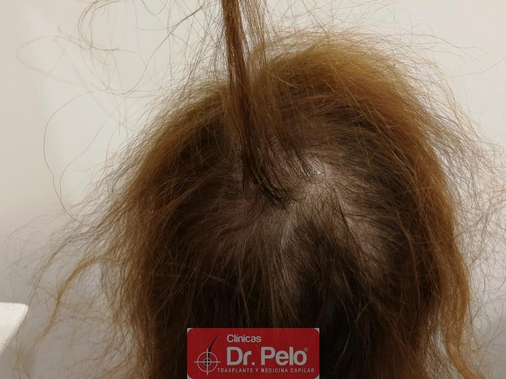 [Imagen: tratameinto-capilar-dr-pelo-6-1.jpg]