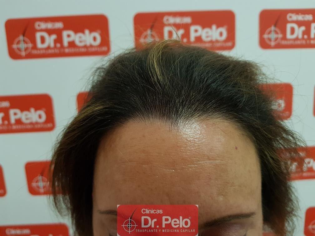 [Imagen: tratameinto-capilar-dr-pelo-8-1.jpg]