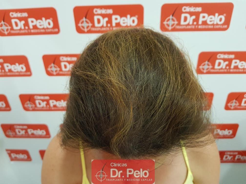 [Imagen: tratameinto-capilar-dr-pelo-9-1.jpg]