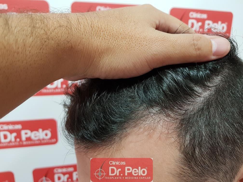 [Imagen: tratamiento-capilar-dr-pelo-12.jpg]