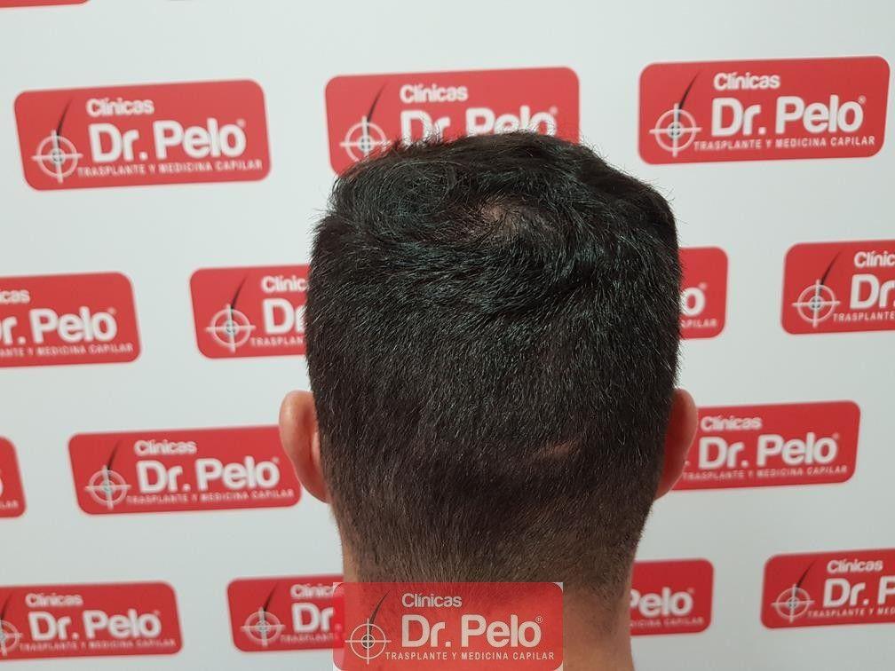 [Imagen: tratamiento-capilar-dr-pelo-13.jpg]