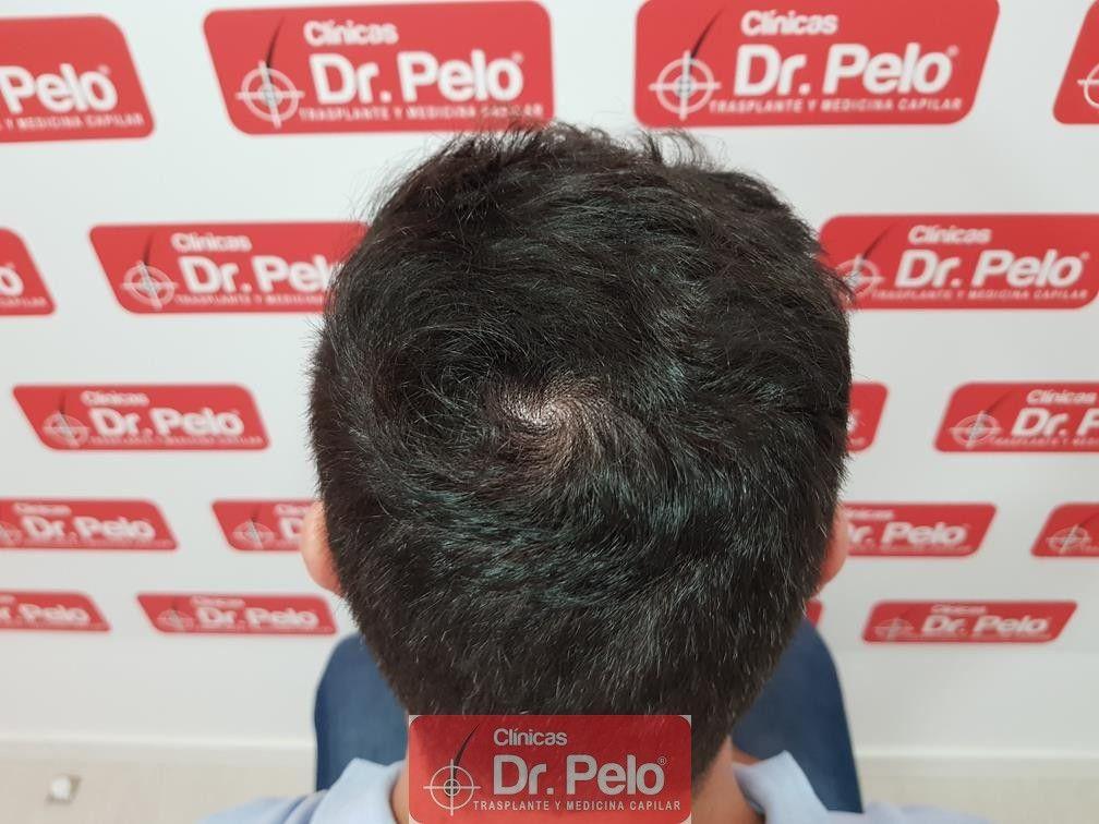 [Imagen: tratamiento-capilar-dr-pelo-14.jpg]