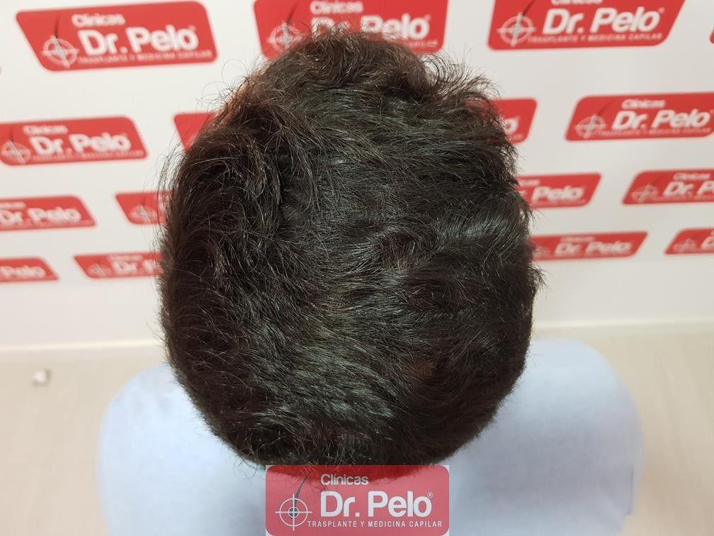 [Imagen: tratamiento-capilar-dr-pelo-15.jpg]