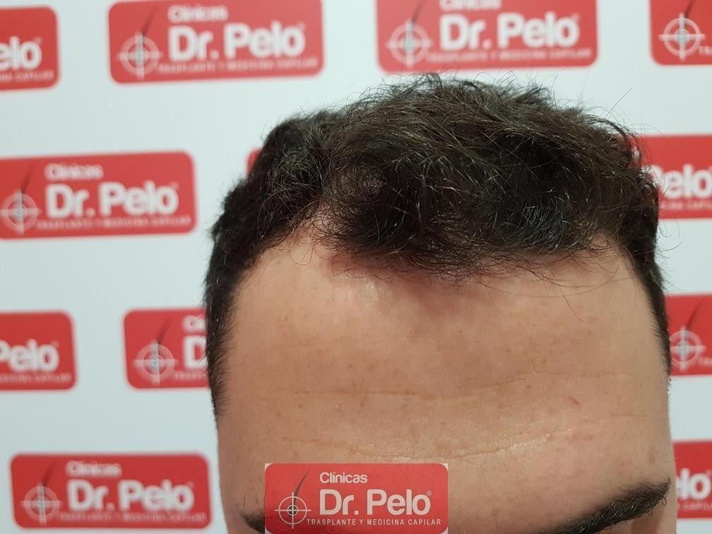 [Imagen: tratamiento-capilar-dr-pelo-2.jpg]