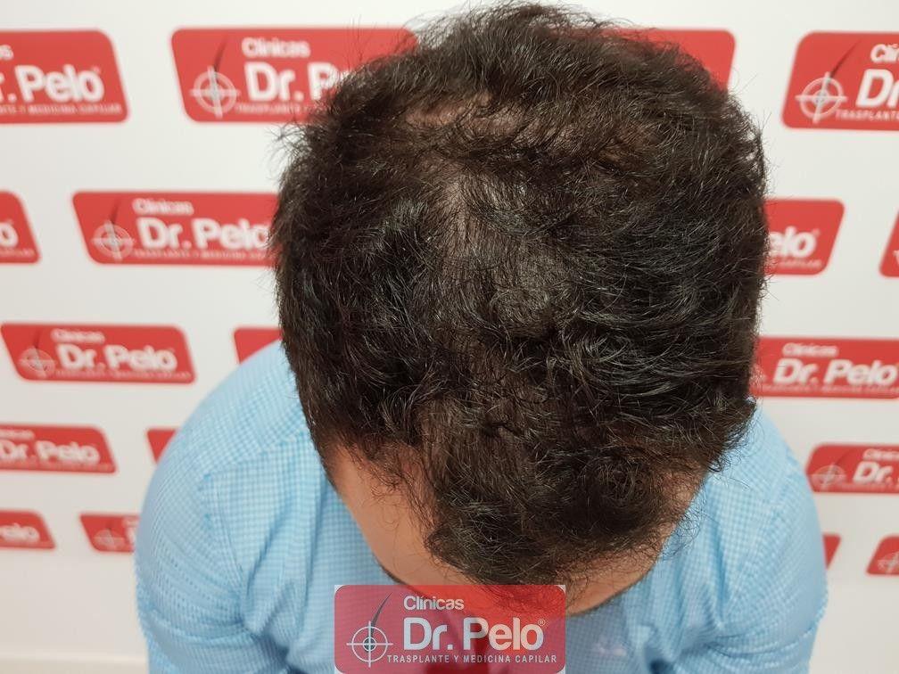 [Imagen: tratamiento-capilar-dr-pelo-3.jpg]
