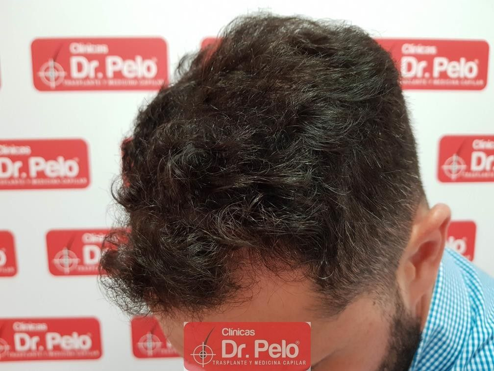 [Imagen: tratamiento-capilar-dr-pelo-4.jpg]