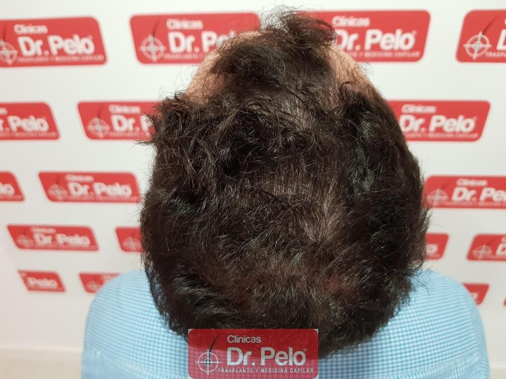 [Imagen: tratamiento-capilar-dr-pelo-6.jpg]