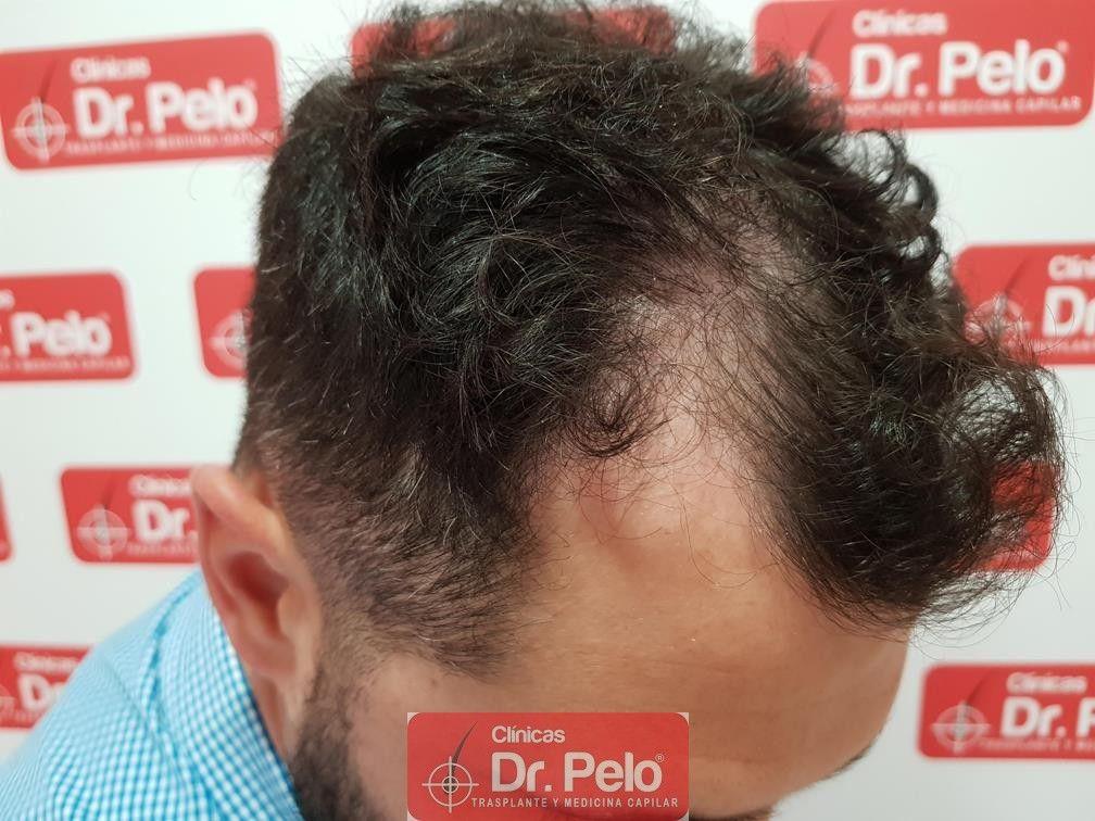 [Imagen: tratamiento-capilar-dr-pelo-7.jpg]