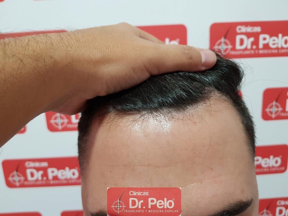 [Imagen: tratamiento-capilar-dr-pelo-9.jpg]