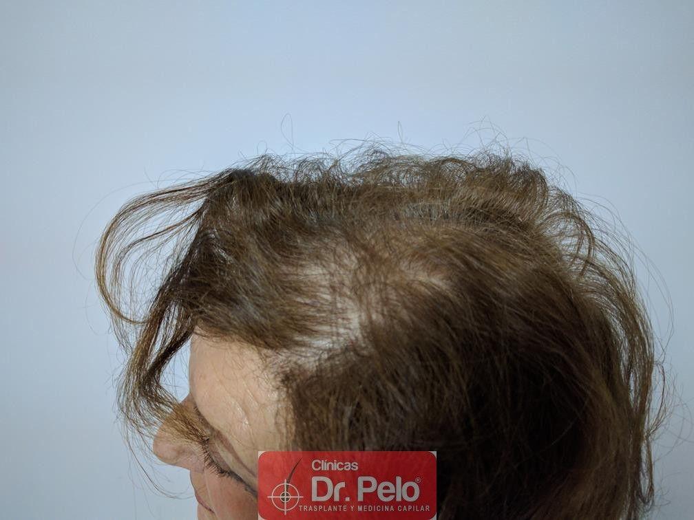 [Imagen: trasplante-capilar-mujer-dr-pelo-11.jpg]