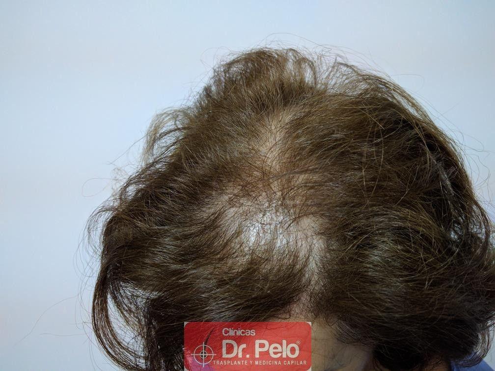 [Imagen: trasplante-capilar-mujer-dr-pelo-12.jpg]