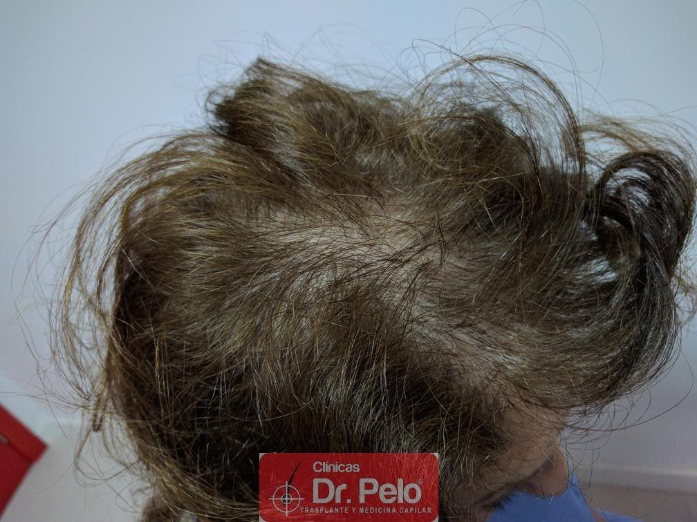 [Imagen: trasplante-capilar-mujer-dr-pelo-15.jpg]