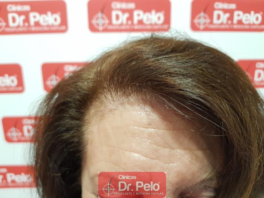 [Imagen: trasplante-capilar-mujer-dr-pelo-18.jpg]