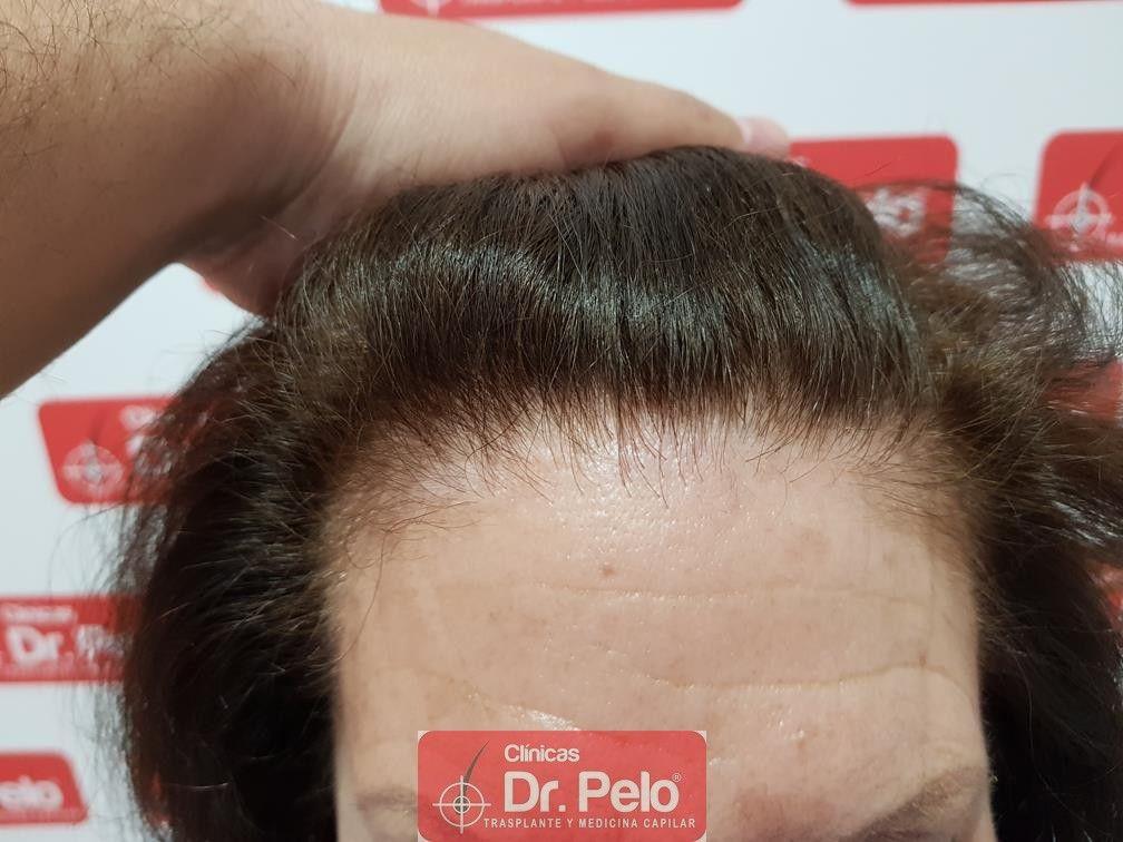 [Imagen: trasplante-capilar-mujer-dr-pelo-19.jpg]