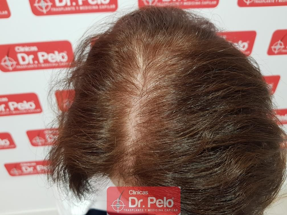 [Imagen: trasplante-capilar-mujer-dr-pelo-20.jpg]