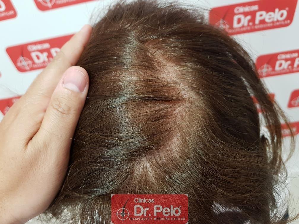 [Imagen: trasplante-capilar-mujer-dr-pelo-22.jpg]